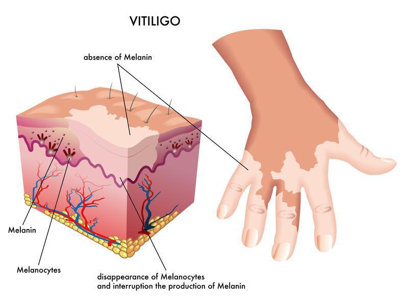 https://www.hypophil.com/wp-content/uploads/2017/07/vitiligo-2.jpg